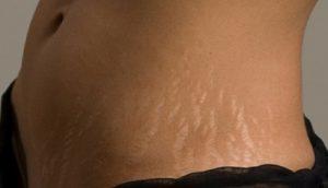 pęknięcie skóry