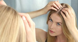 łysienie głowy kobiety