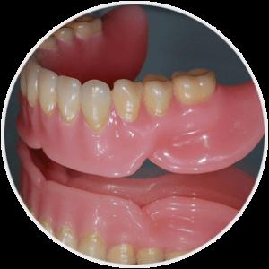 Proteza zębowa - model