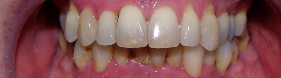 Zgryz - zęby
